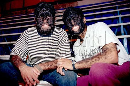 Two teenage brothers pose for a photograph before getting ready to perform in The Mexican National Circus. The two boys have a rare disease called congenital hypertrichosis, meaning excessive hair from birth.