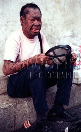A burnt beggar in San Salvador, El Salvador, Central America.